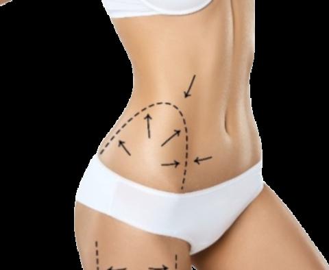 maderoterapia, masaż bańką chińska, masaż odchudzający, masaż wyszczuplający, masaż antycellulitowy, cellulit, pomarańczowa skórka, drenaż limfatyczny, masaż limfatyczny drenaż, masaż po liposukcji, drenaże po liposukcji